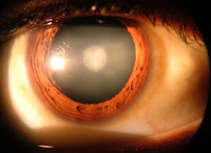 cataract eye health