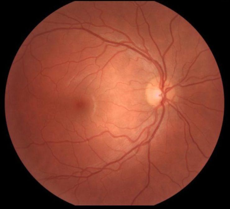 retinal picture