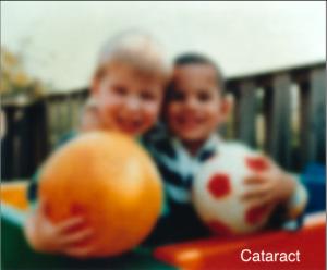 blurry vision cataract